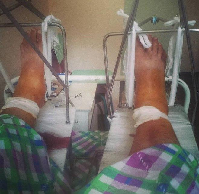 Михайло Казаков отримав перелом обох ніг