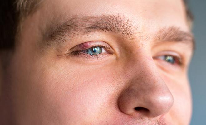 ячмень на глазуячмень на глазу - лечение, причины, симптомы