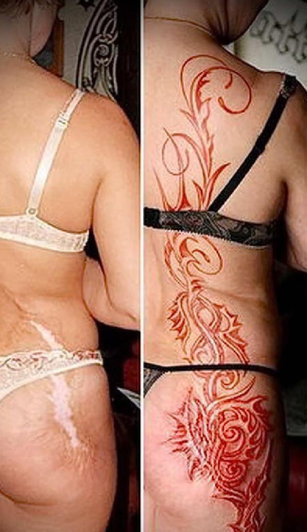 Татуировки вместо шрамов