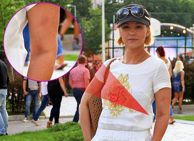 Наташа Пугачева показала синяки