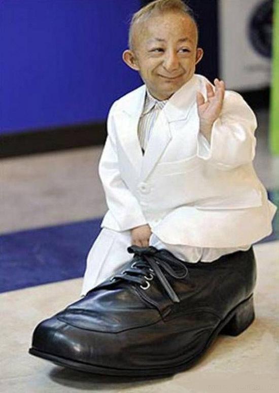 Самый маленький человек в мире