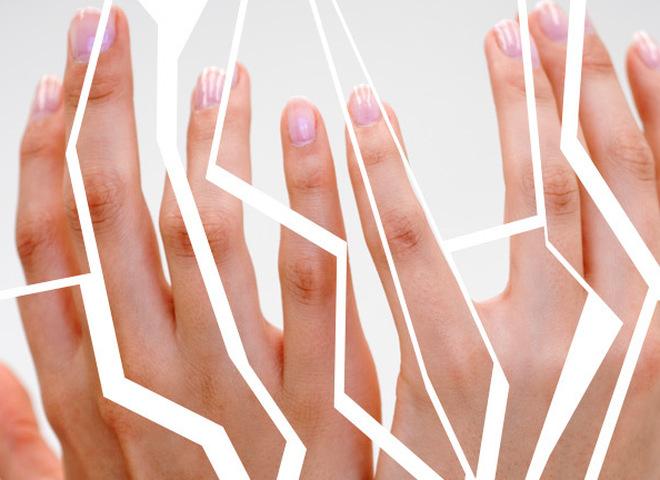 Что делать, если трескается кожа на руках