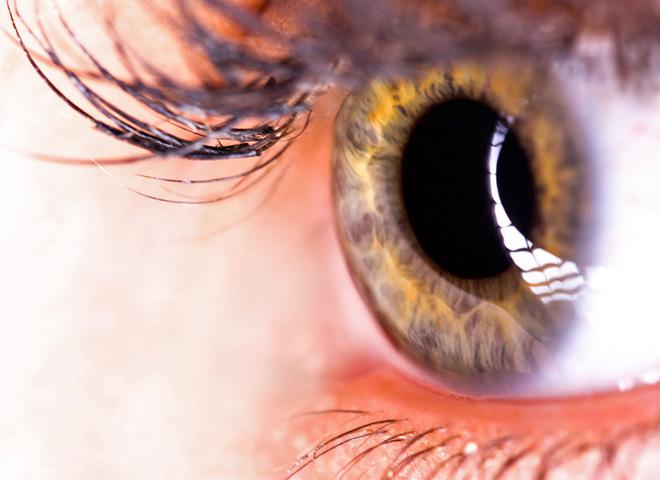 Как распознать и лечить глаукому