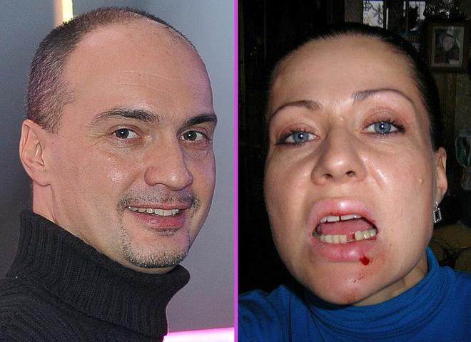 Максим Паперник побив свою рідну сестру
