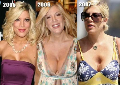 Неудачные операции по увеличению бюста фото