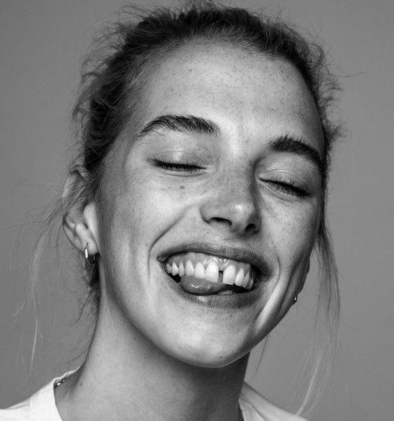 Діастема — щілина між зубами
