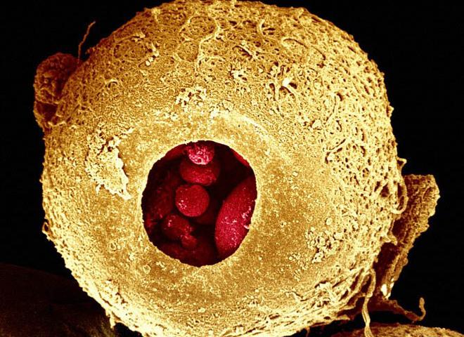 Как выглядит наше тело под микроскопом: 25 удивительных фотографий