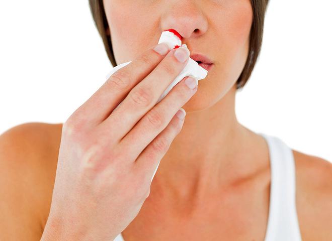 Як зупинити кров з носа: швидко і ефективно